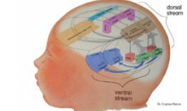 Tutorial-Cortical Visual Impairment, Pt1.