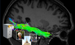 fMRI image of the brain with ventral stream highlighted
