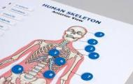 The image is of the APH skeleton tactile graphic.