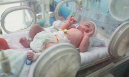 Image of premature infant in NICU.