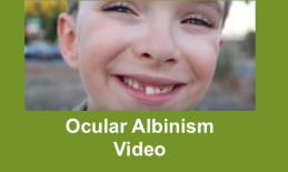"""Close up photo of smiling 8 year old boy missing a front tooth with text, """"Ocular Albinism"""""""
