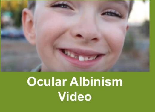 "Close up photo of smiling 8 year old boy missing a front tooth with text, ""Ocular Albinism"""