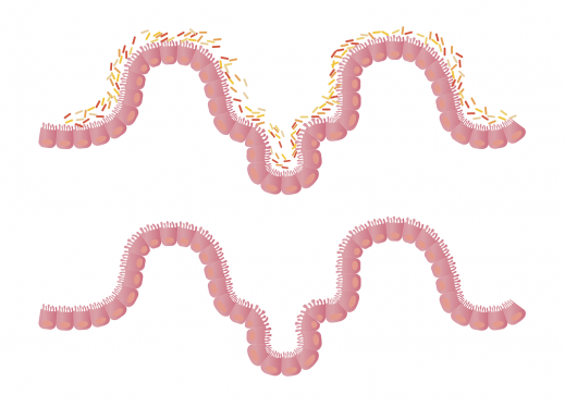 The Function of Villi in the Small Intestine | Perkins eLearning