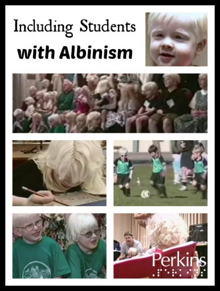 Including Students with Albinism with Susan Dalton.