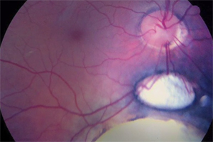 A color photo of a retinal sphere, showing blood vessels and retinal tissue.
