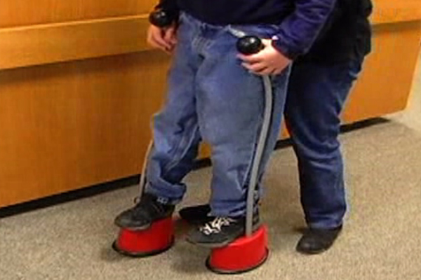 In a physical therapy session, a boy uses a pair of short stilts that have wide plastic bases.