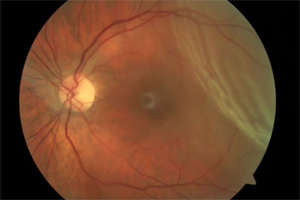 A photo shows a retina with red blood vessels to the left and wrinkled retinal sphere to the right in the photo.