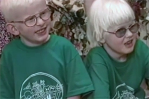 Two young people with albinism sit side-by-side. Both wear glasses, but only one has tinted lenses.